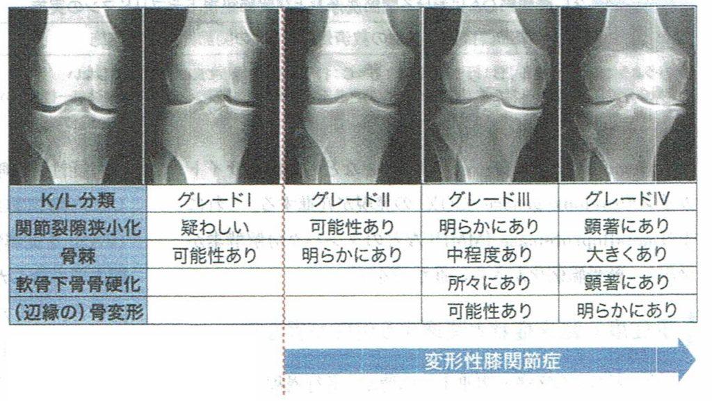 変形性膝関節症、分類