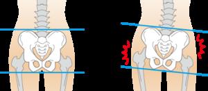 変形性膝関節症,女性に多い,理由