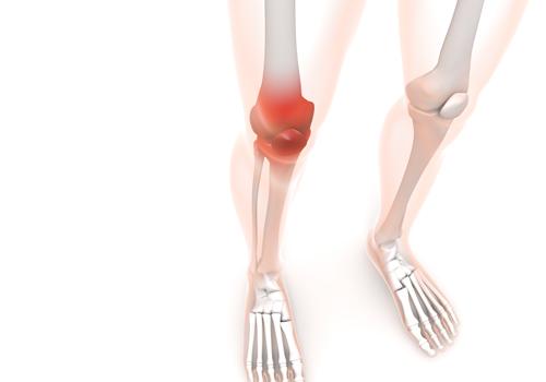 変形性膝関節症,原因,筋力低下