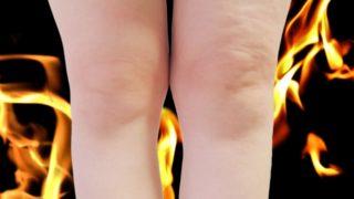 膝の痛み,太りすぎ