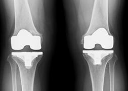 変形性膝関節症,人工関節,手術