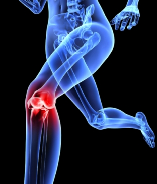 変形性膝関節症,軟骨,再生医療