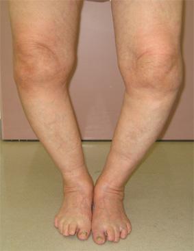 病院,変形性膝関節症,治療